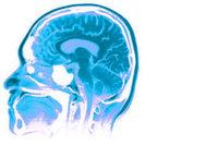 Er valt wat te kiezen, ook na revolutie in neuropsychologie image